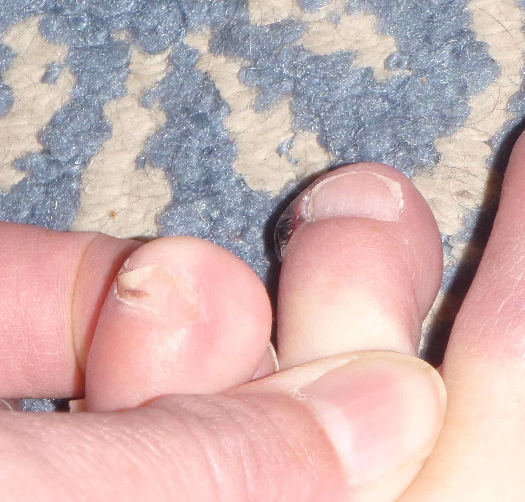 Toe Nail Fungus, Barefoot Running Blood Blisters, and Toe Socks