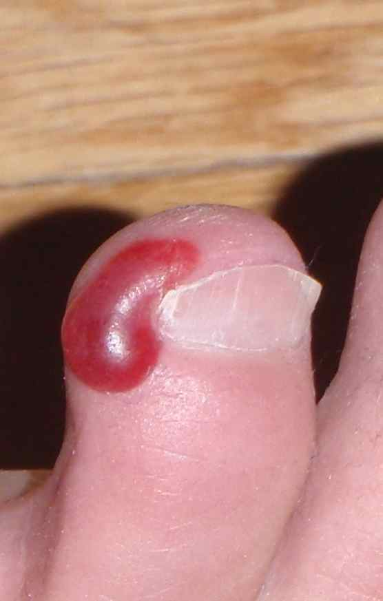 Blood Blister On Toe