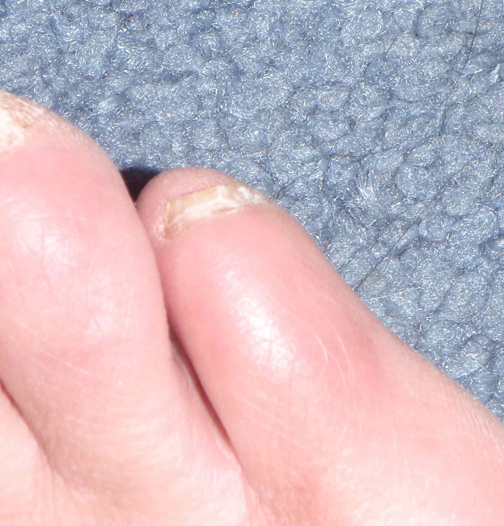 The First Infected Pinky Toe As It Looks Today Nail Trimmed Down So