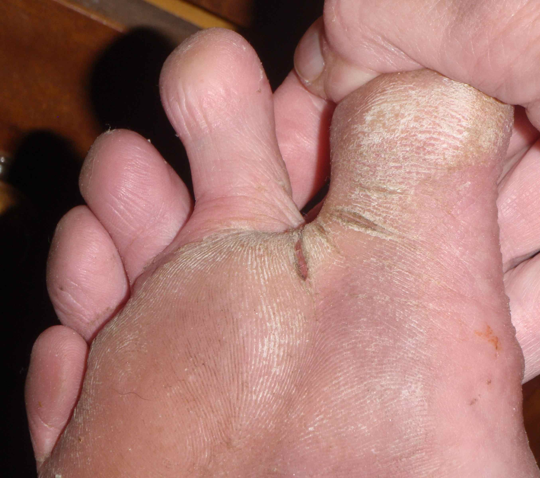Barefoot Runner Deals With Cracks