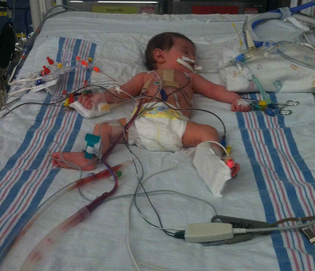 Cori Lou Begins a Well Monitored Recovery After Pediatric Open Heart Surgery