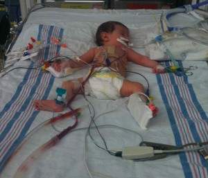 Cori Lou immediately after open heart surgery with a mind boggling number of tubes and wires.