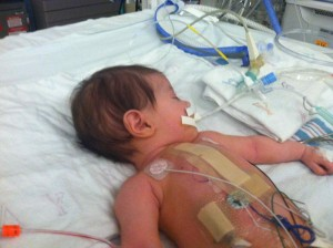 They will be looking for signs of independent breathing today, and work toward weaning her from the ventilator.