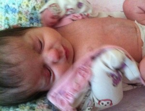 Cori Lou has a pretty smooth tummy almost 8 weeks after her omphalocele was repaired.