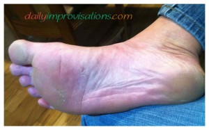 What my feet look like about 3 hours after the barefoot run on sharp asphalt.